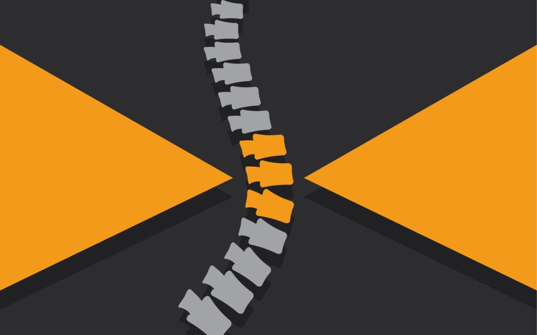 4 Benefits of Minimally Invasive Spine Surgery Over Traditional Spine Surgery