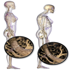 How osteoporosis affects the spine patrick senatus md illustration 2 osteoporosis can cause patients to appear hunchbacked sciox Choice Image