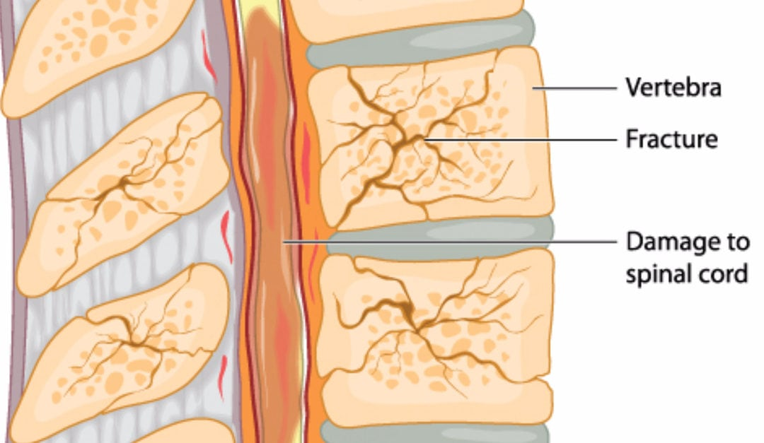 How Osteoporosis Affects the Spine